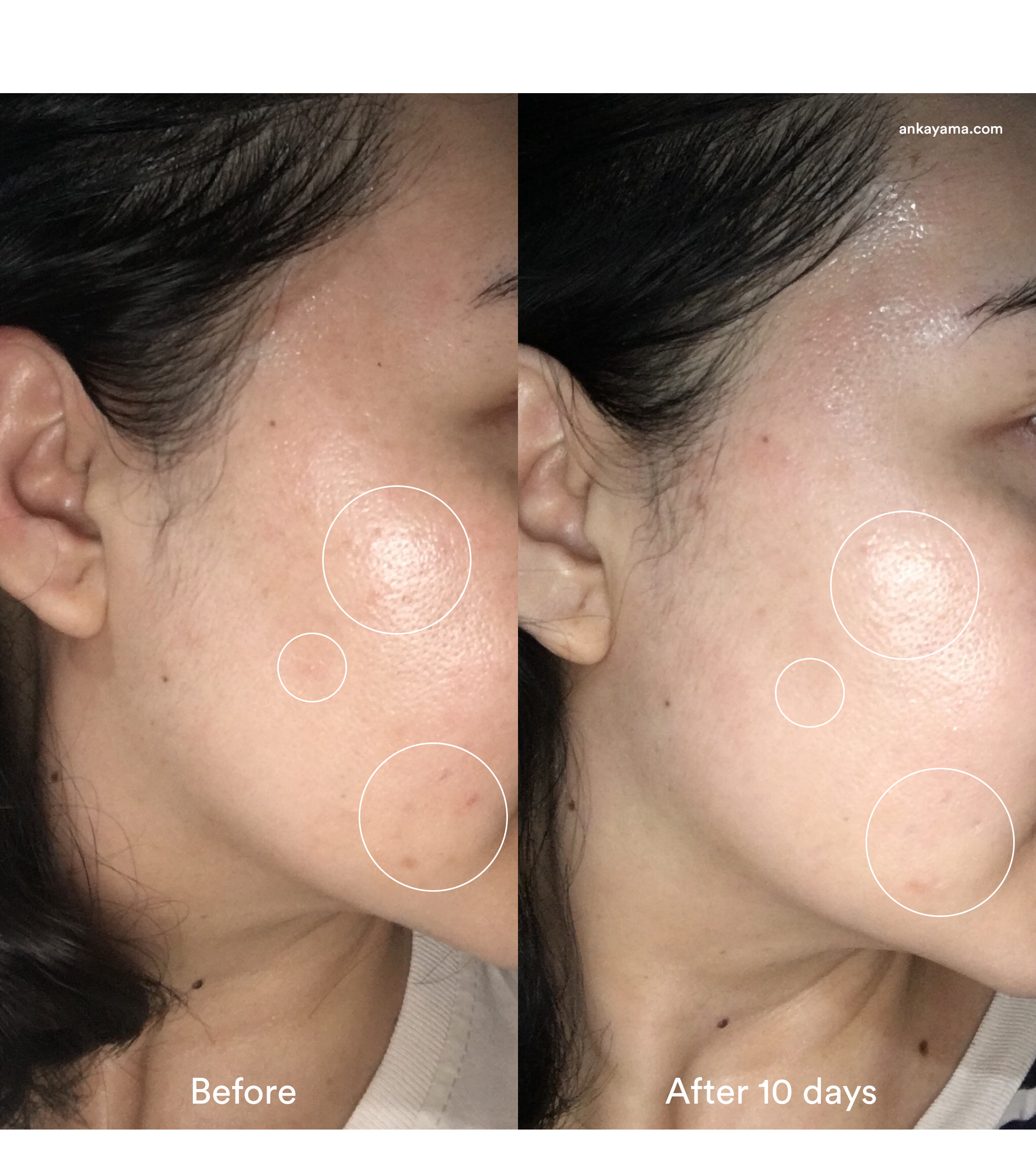 Before After Clinique Fresh Pressed - Ankayama